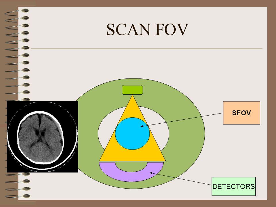 SCAN FOV SFOV DETECTORS