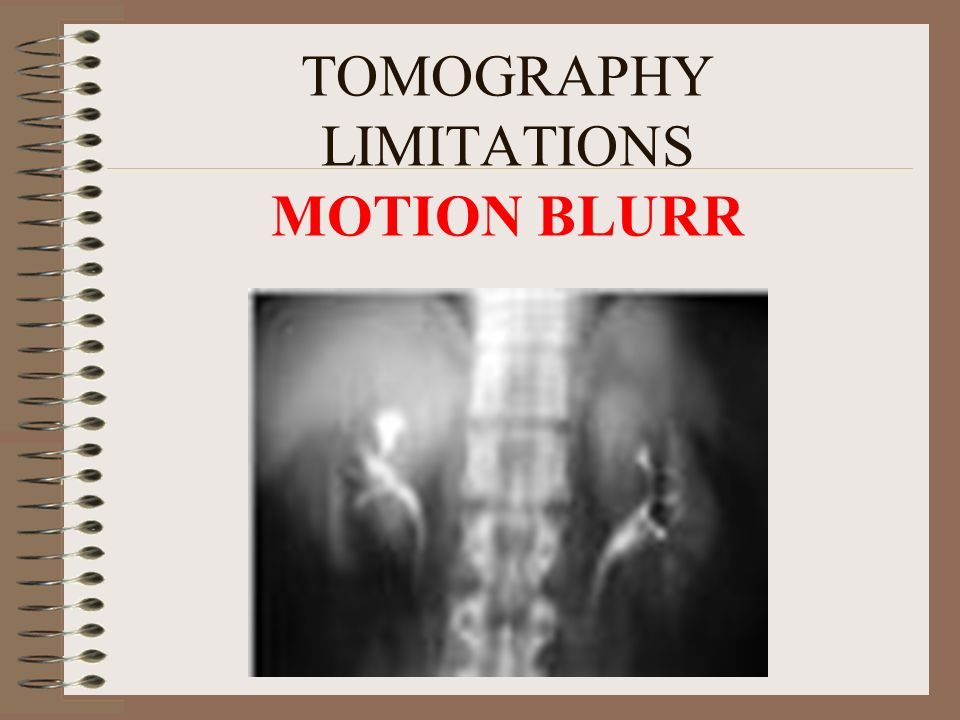 TOMOGRAPHY LIMITATIONS MOTION BLURR