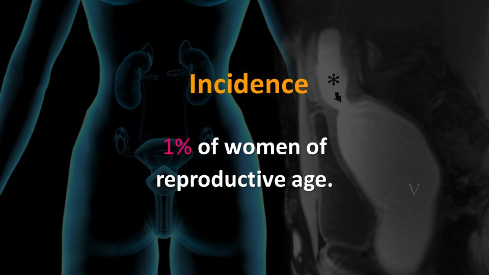 Incidence 1% of women of reproductive age.