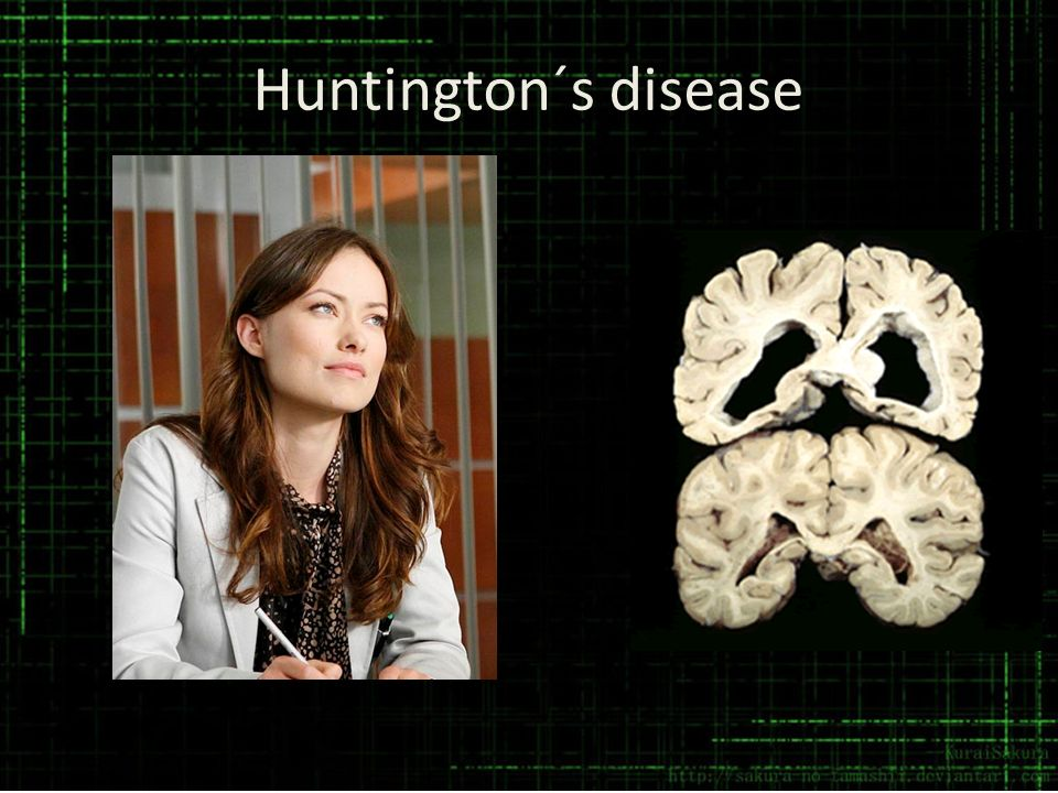 Huntington´s disease