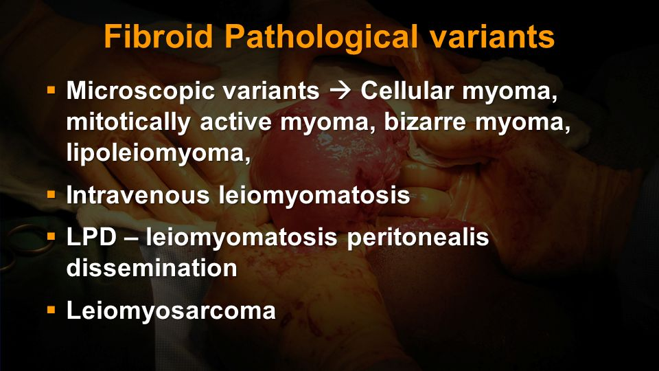 Fibroid Pathological variants