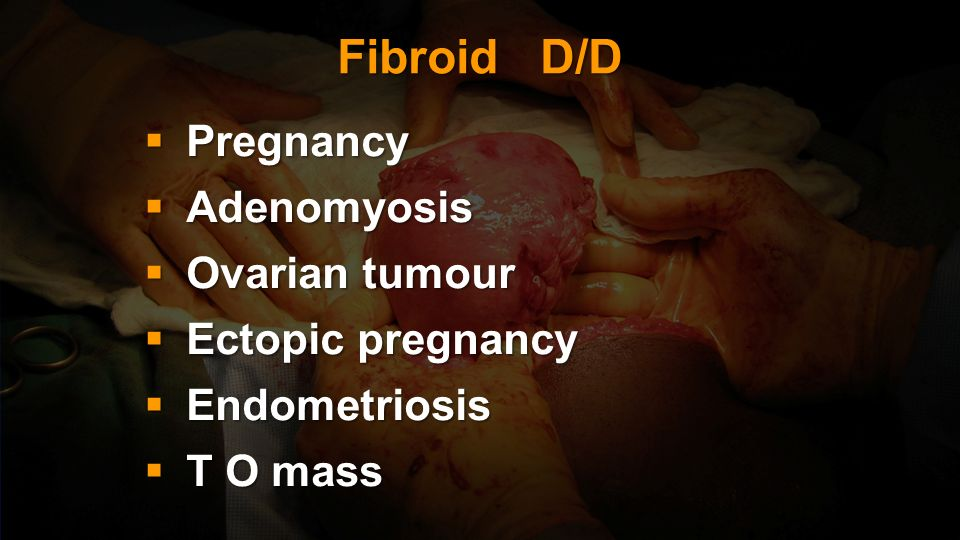 Fibroid D/D Pregnancy Adenomyosis Ovarian tumour Ectopic pregnancy