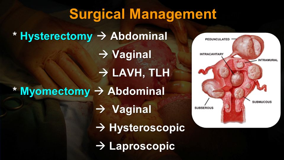 Surgical Management * Hysterectomy  Abdominal  Vaginal  LAVH, TLH