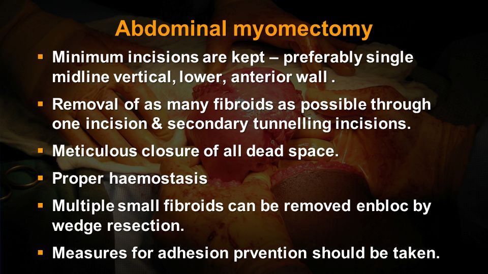 Abdominal myomectomy Minimum incisions are kept – preferably single midline vertical, lower, anterior wall .