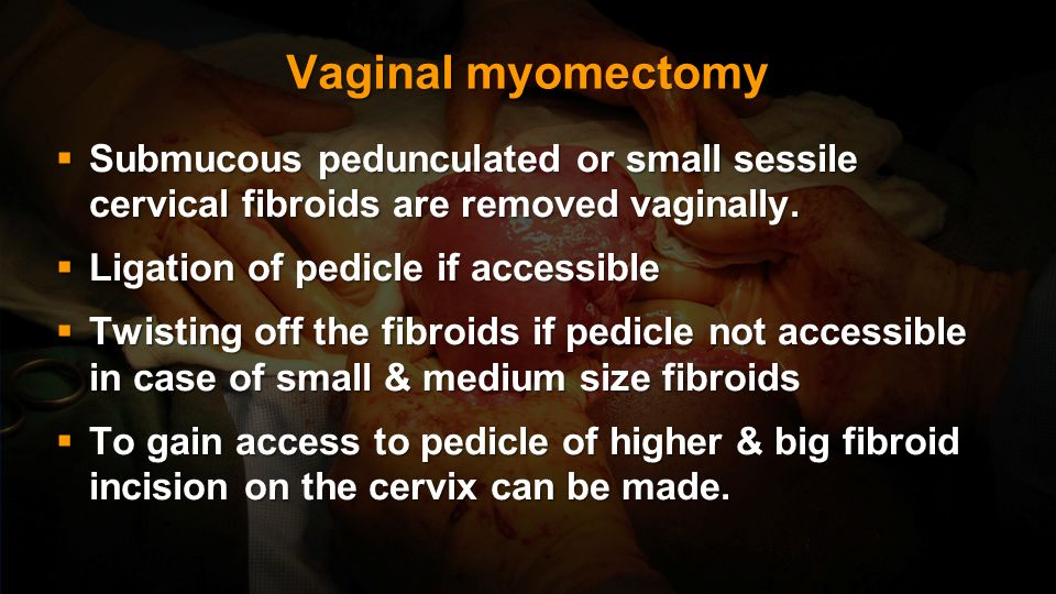 Vaginal myomectomy Submucous pedunculated or small sessile cervical fibroids are removed vaginally.