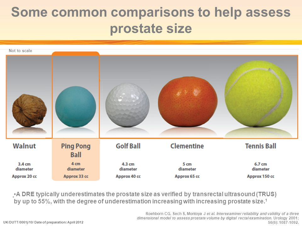 Some common comparisons to help assess prostate size