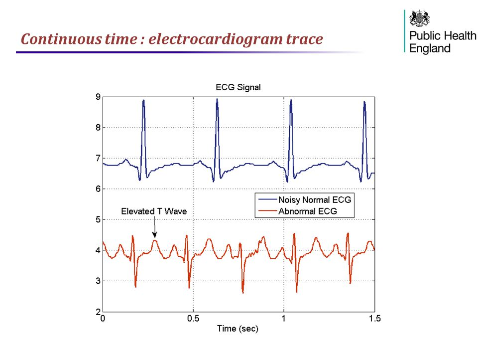 Continuous time : electrocardiogram trace