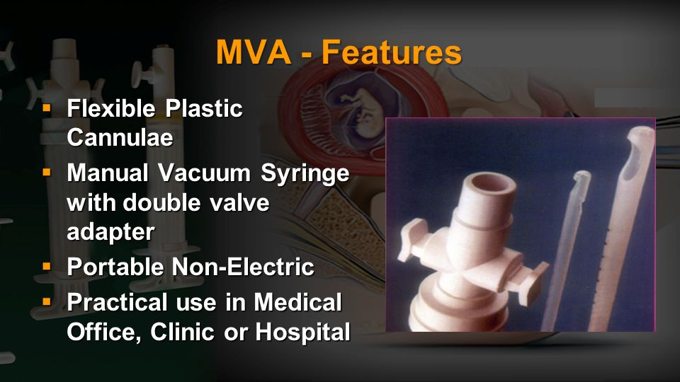 MVA - Features Flexible Plastic Cannulae