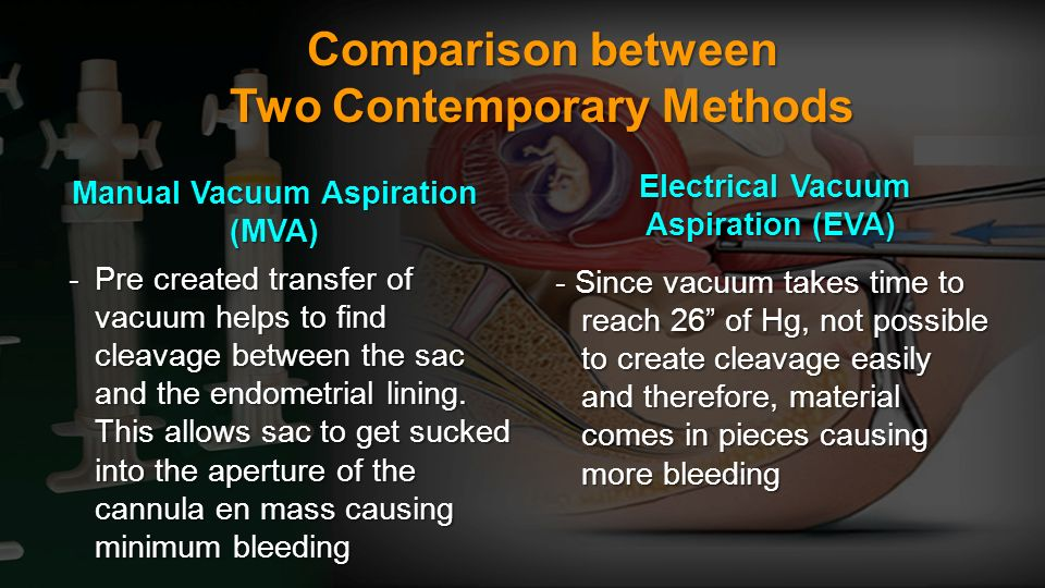 Comparison between Two Contemporary Methods