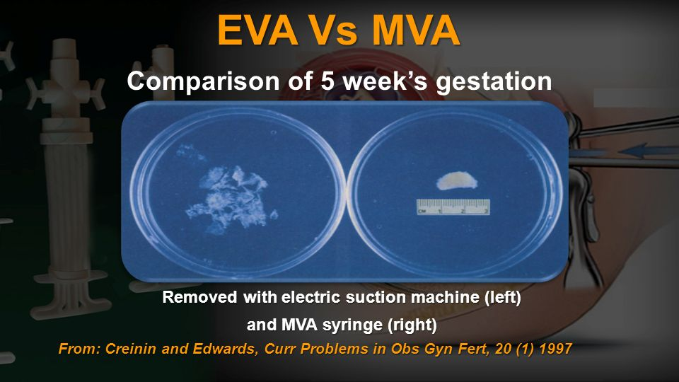 EVA Vs MVA Comparison of 5 week's gestation