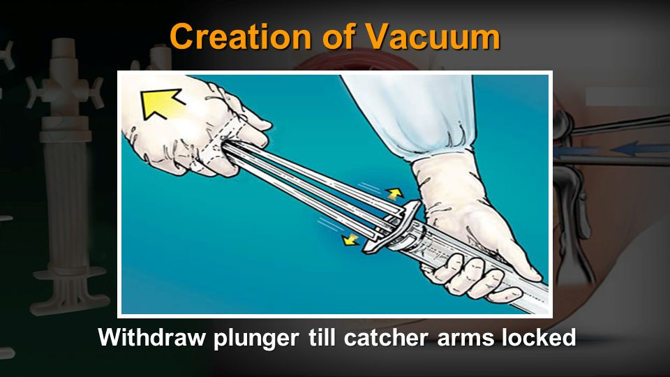 Withdraw plunger till catcher arms locked