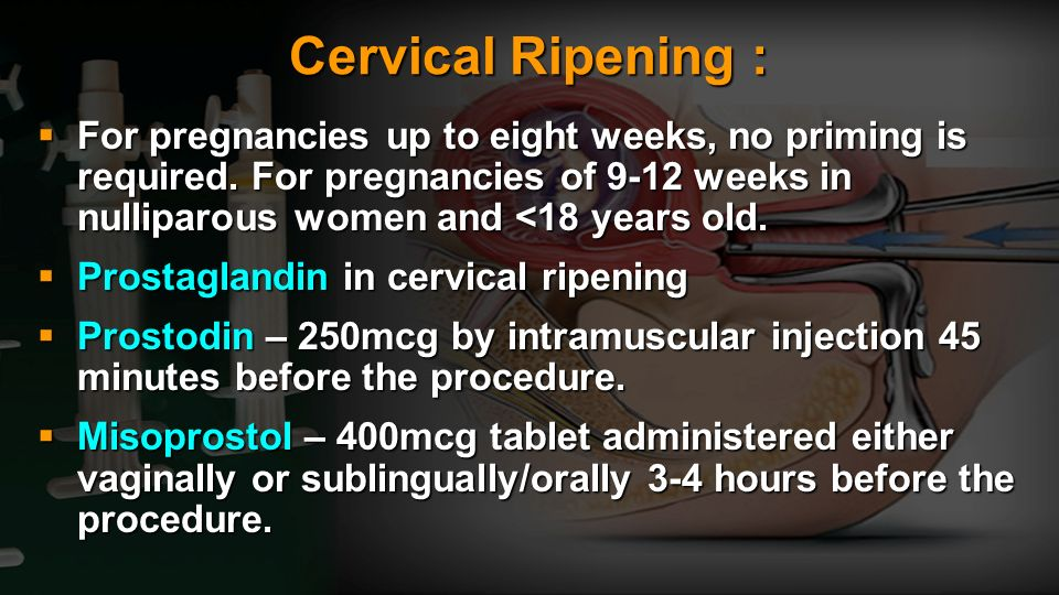 Cervical Ripening :