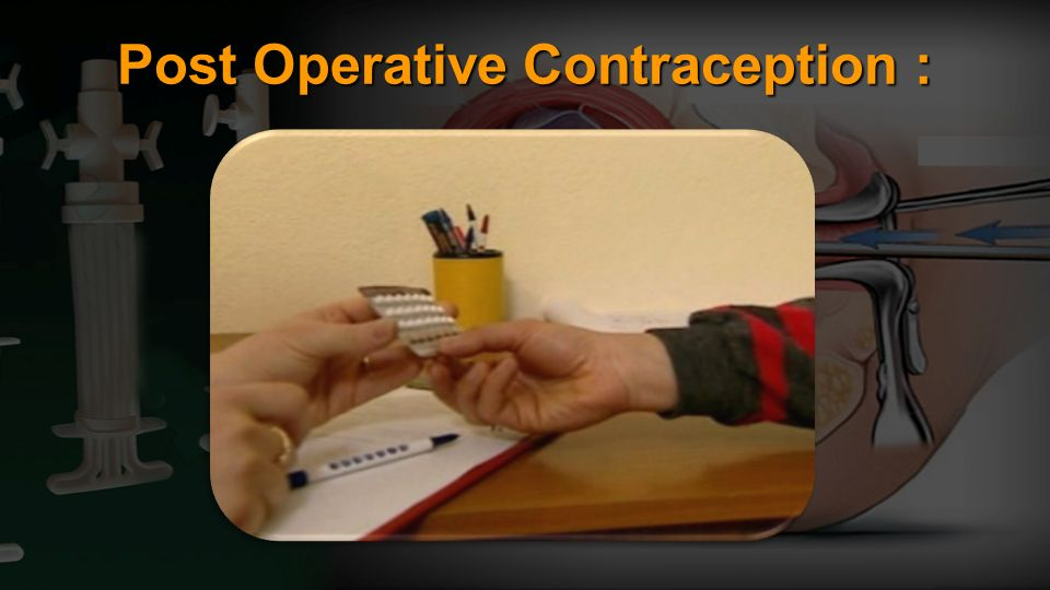 Post Operative Contraception :