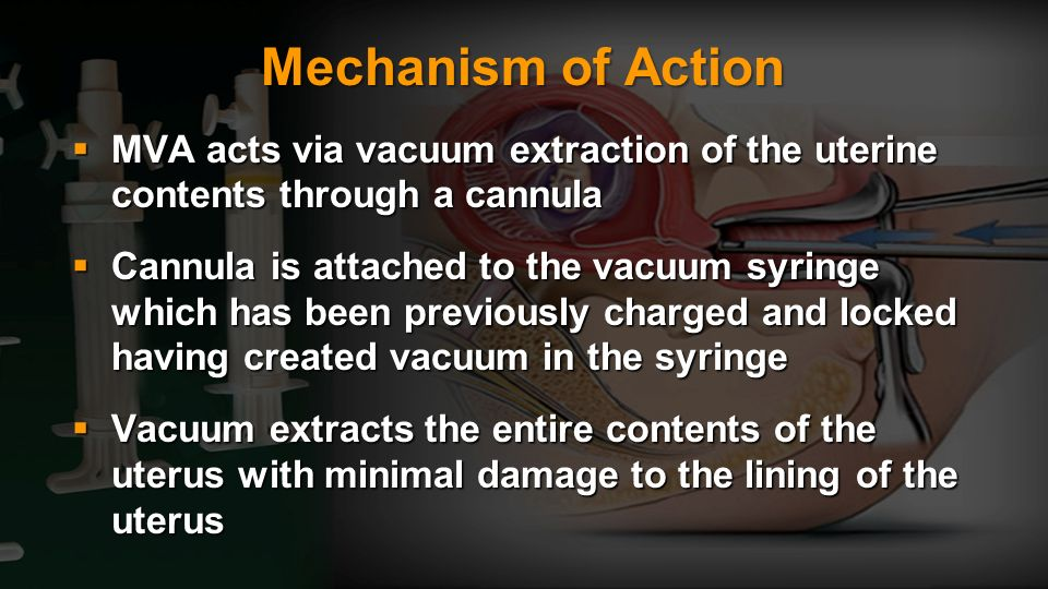 Mechanism of Action MVA acts via vacuum extraction of the uterine contents through a cannula.