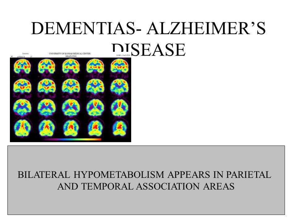 DEMENTIAS- ALZHEIMER'S DISEASE