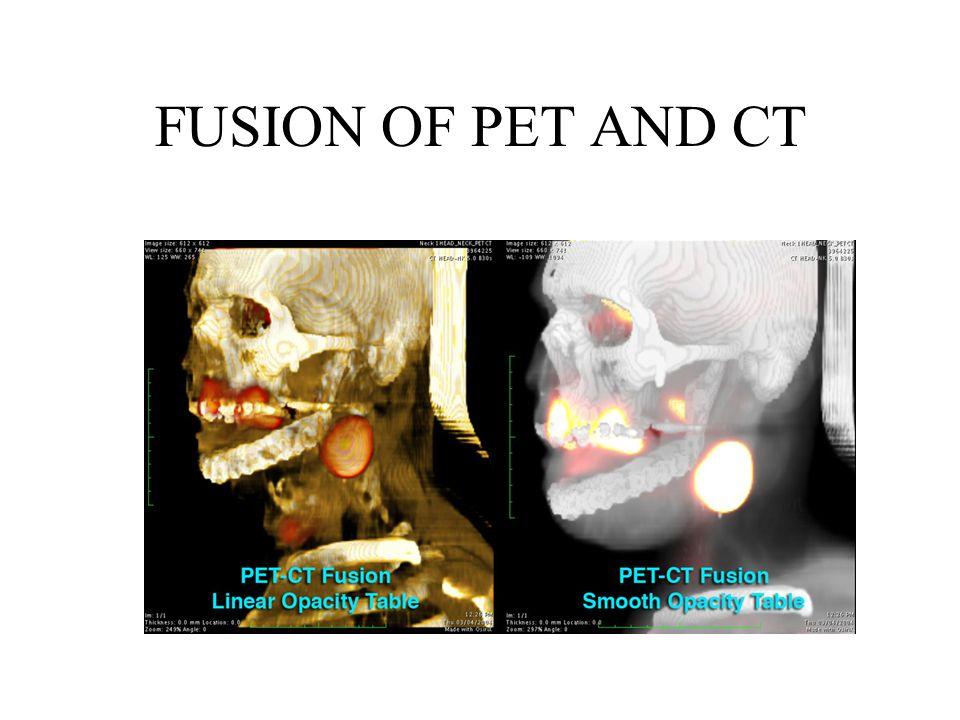 FUSION OF PET AND CT