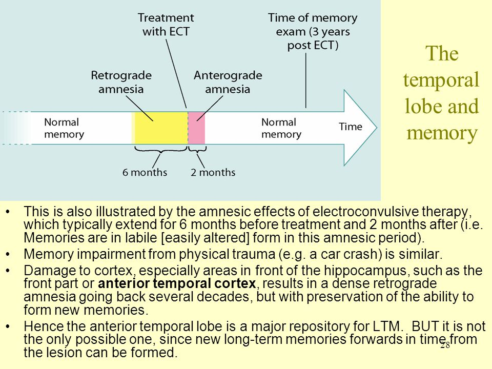 The temporal lobe and memory