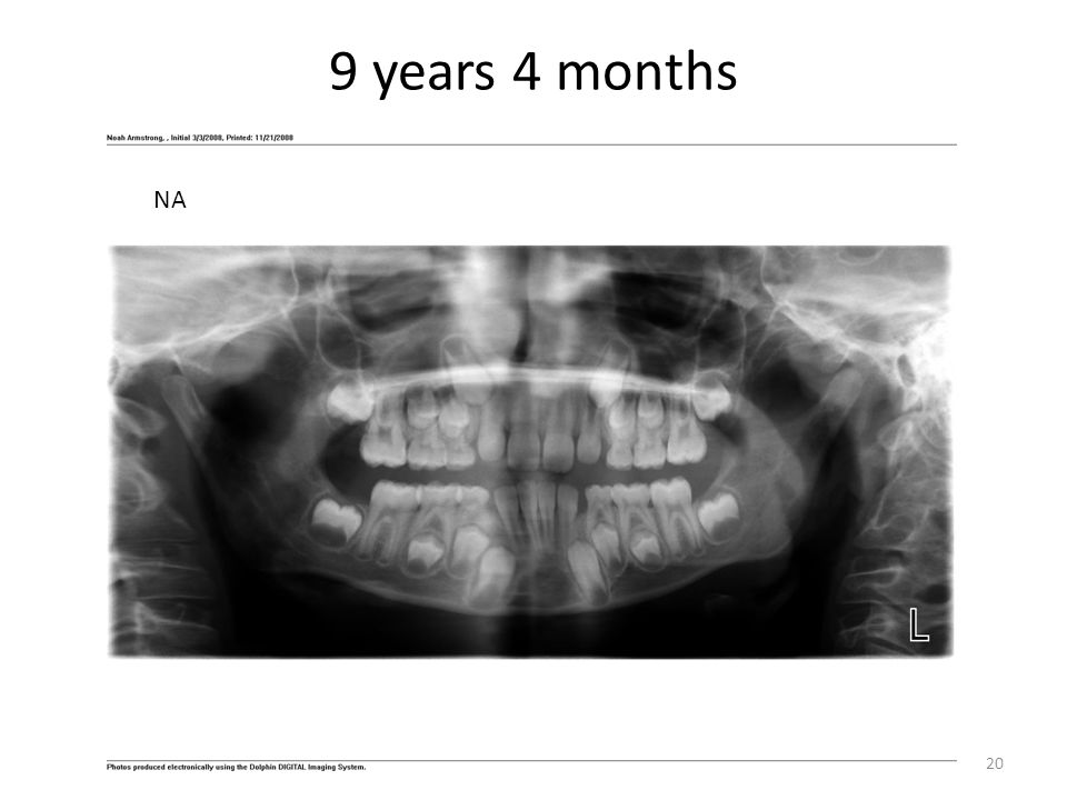 9 years 4 months NA Note need for several extraction