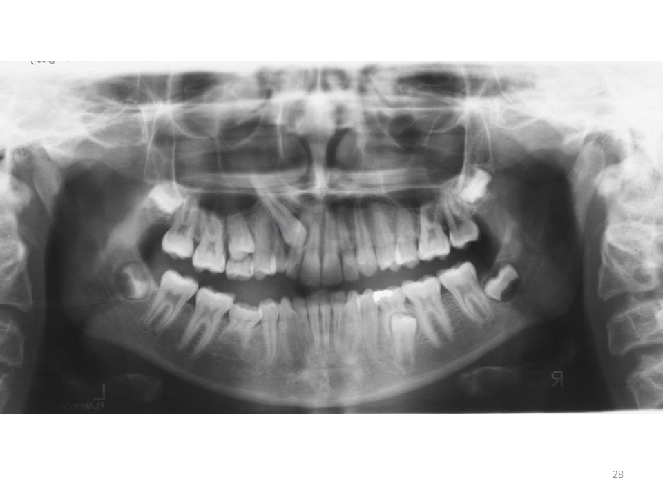 Angulation of the lateral and central due to pressure of the canine