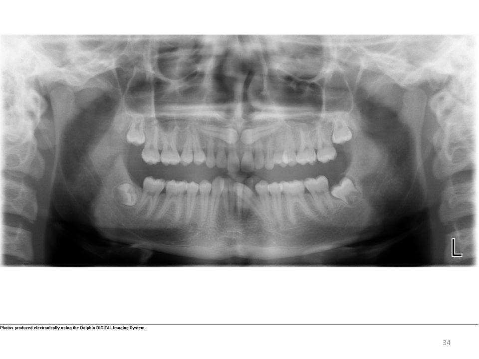 Horizontal impactions, note mandibular canine