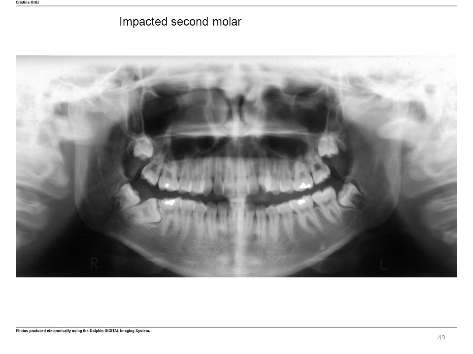 Impacted second molar
