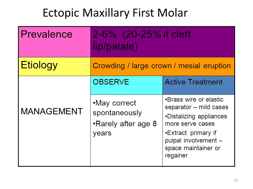 Ectopic Maxillary First Molar