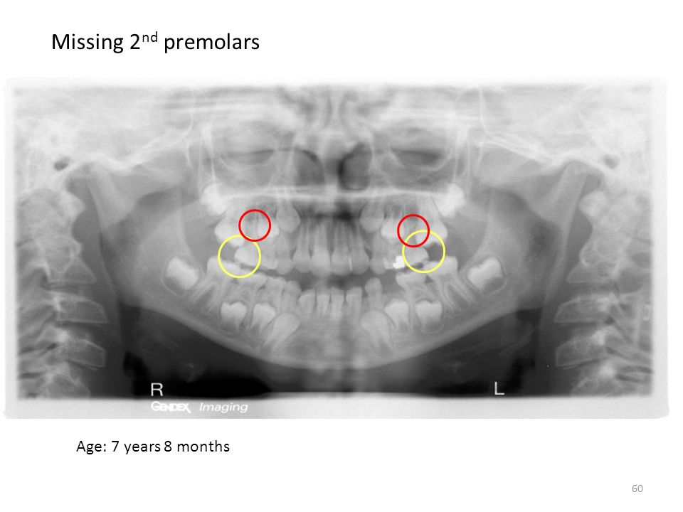 Missing 2nd premolars Age: 7 years 8 months