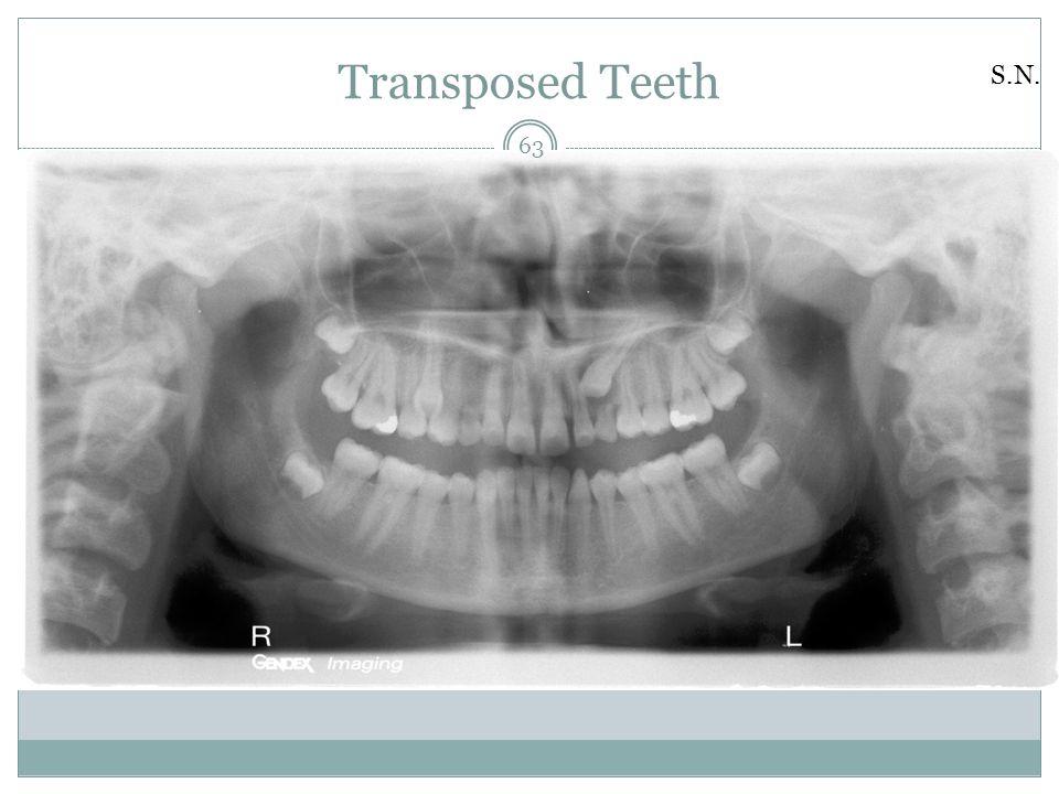 Transposed Teeth S.N.