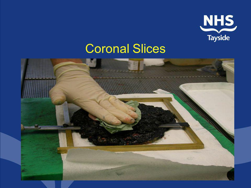 Coronal Slices