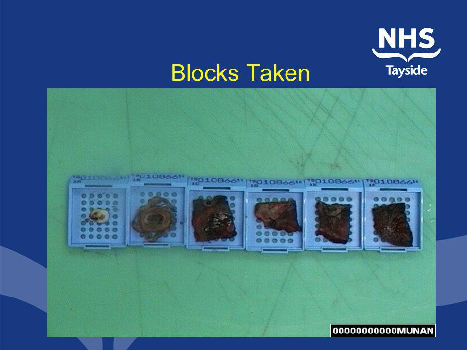 Blocks Taken