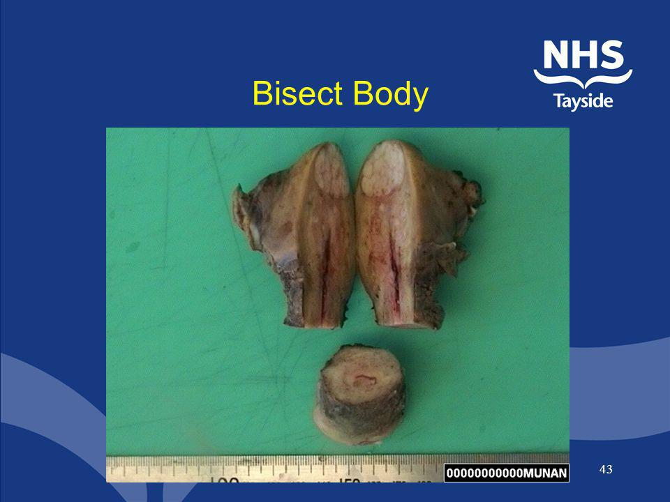 Bisect Body