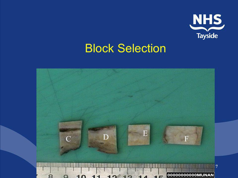 Block Selection E D C F