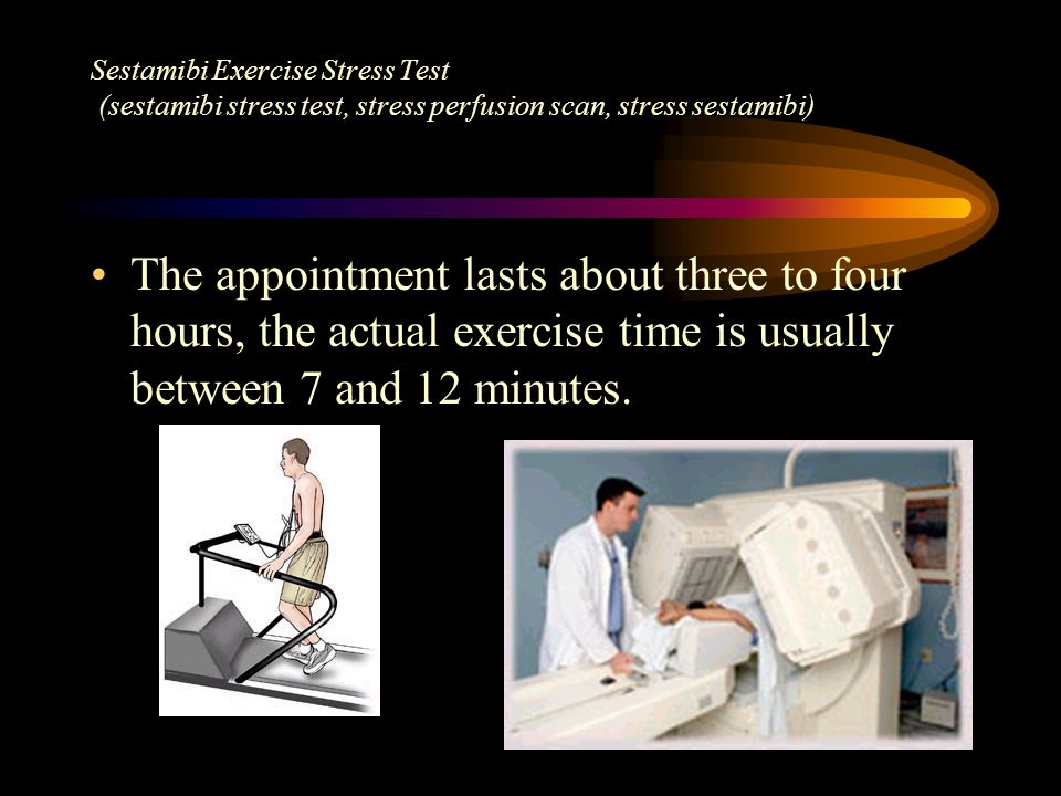 Sestamibi Exercise Stress Test (sestamibi stress test, stress perfusion scan, stress sestamibi)
