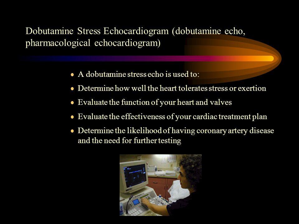 Dobutamine Stress Echocardiogram (dobutamine echo, pharmacological echocardiogram)
