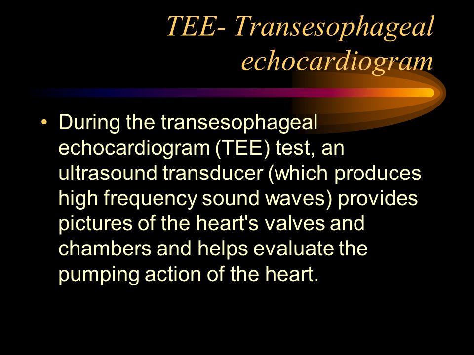 TEE- Transesophageal echocardiogram