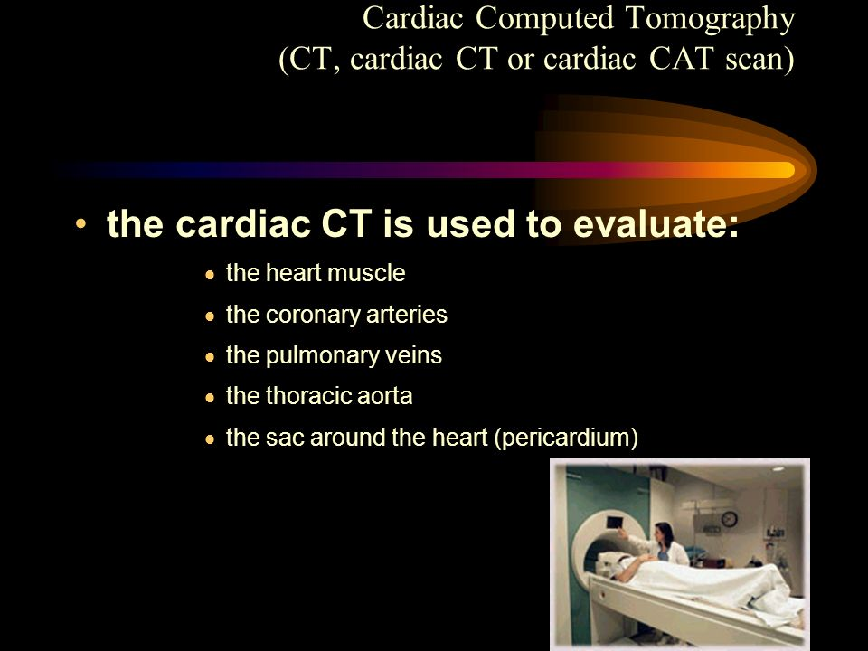 Cardiac Computed Tomography (CT, cardiac CT or cardiac CAT scan)