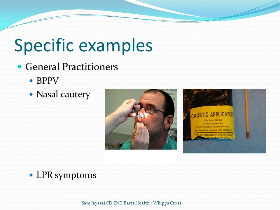 Specific examples General Practitioners BPPV Nasal cautery