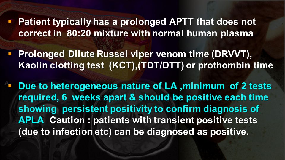 Patient typically has a prolonged APTT that does not correct in 80:20 mixture with normal human plasma