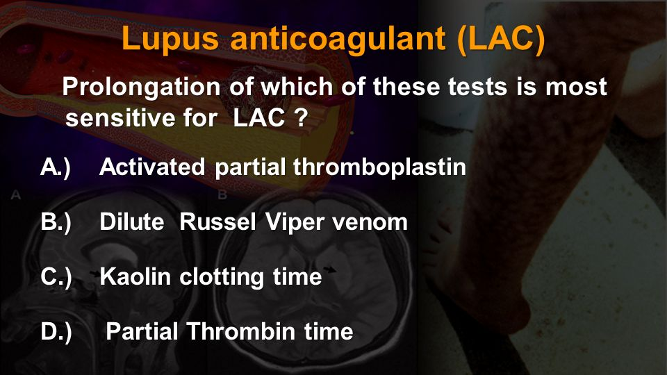 Lupus anticoagulant (LAC)