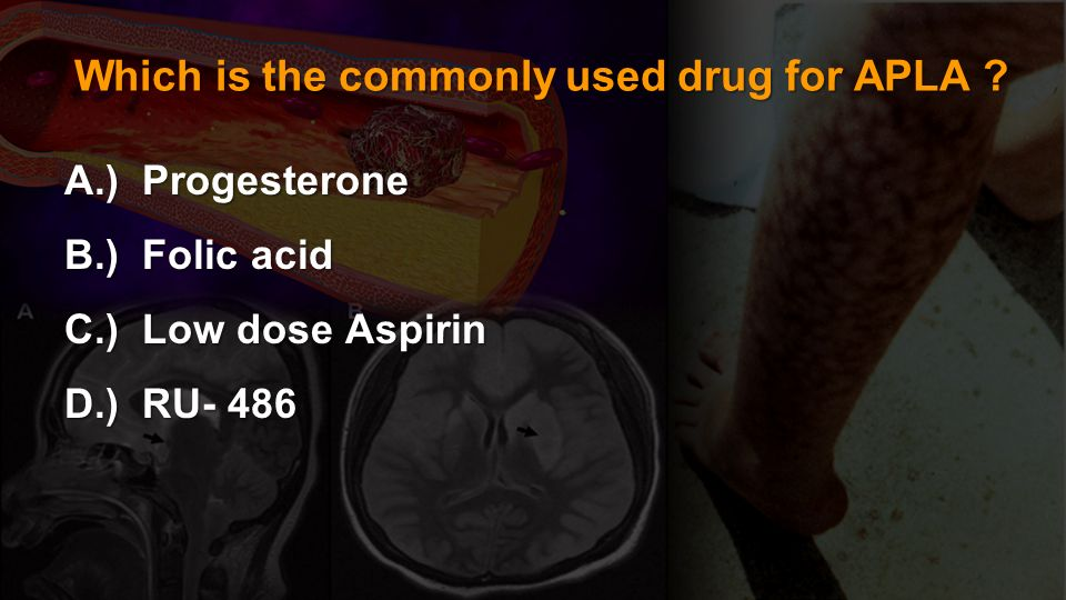 Which is the commonly used drug for APLA
