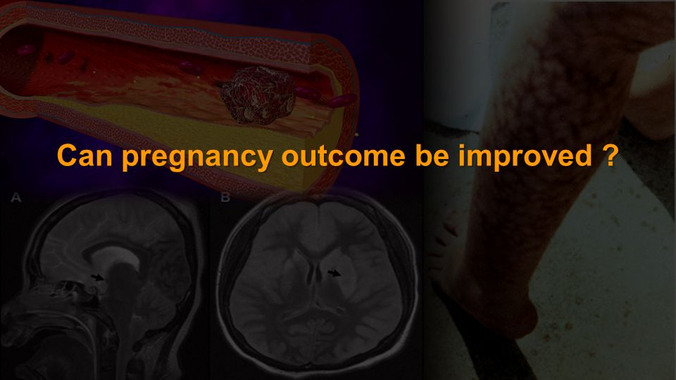 Can pregnancy outcome be improved