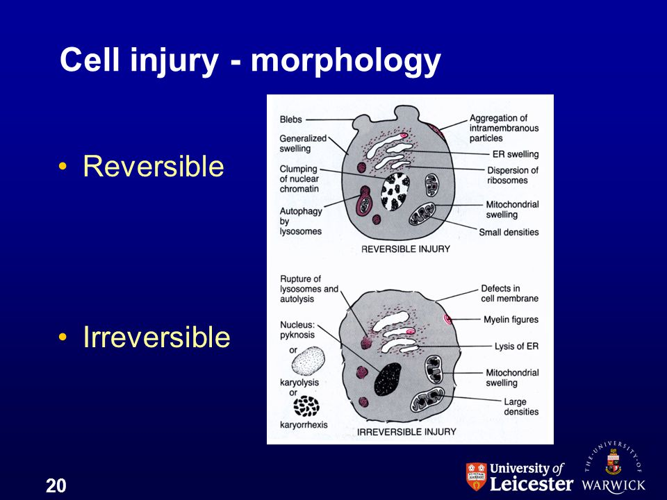 Cell injury - morphology