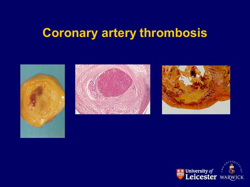 Coronary artery thrombosis