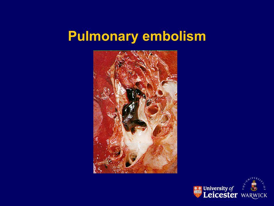 Pulmonary embolism