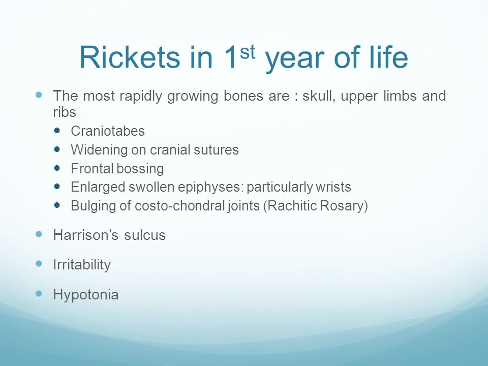Rickets in 1st year of life