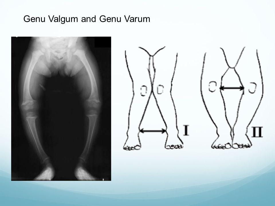Genu Valgum and Genu Varum