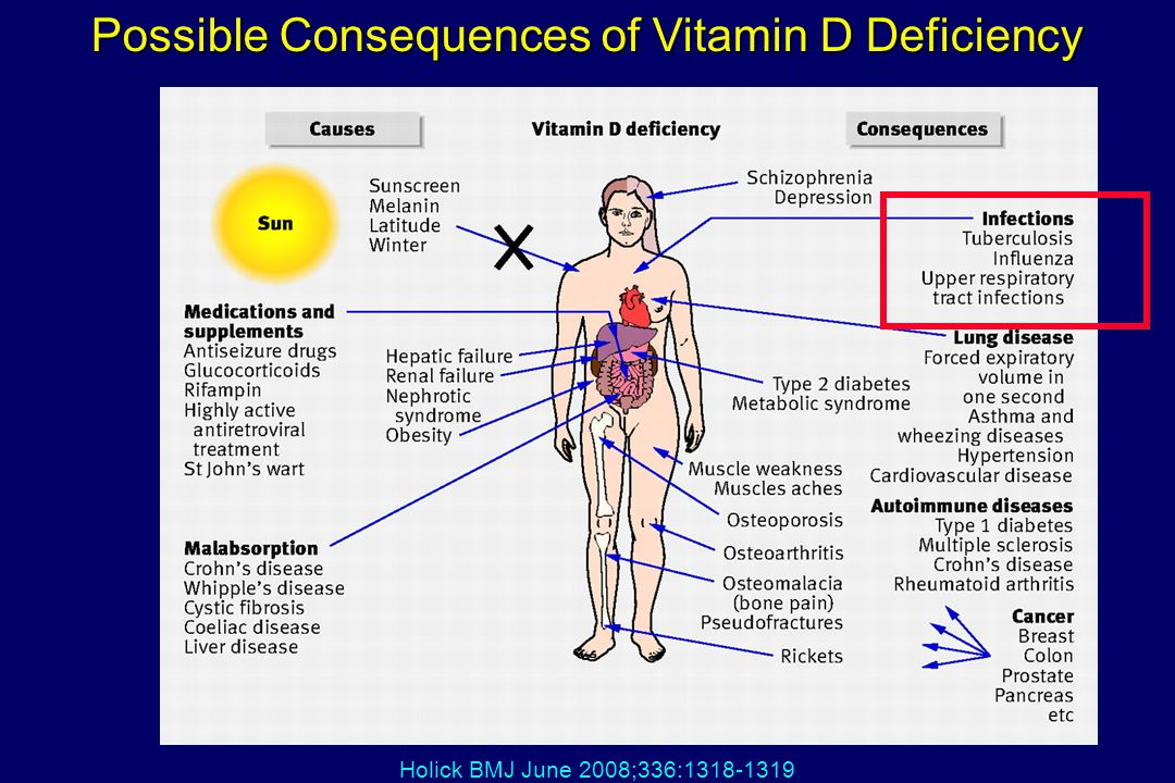 Possible Consequences of Vitamin D Deficiency
