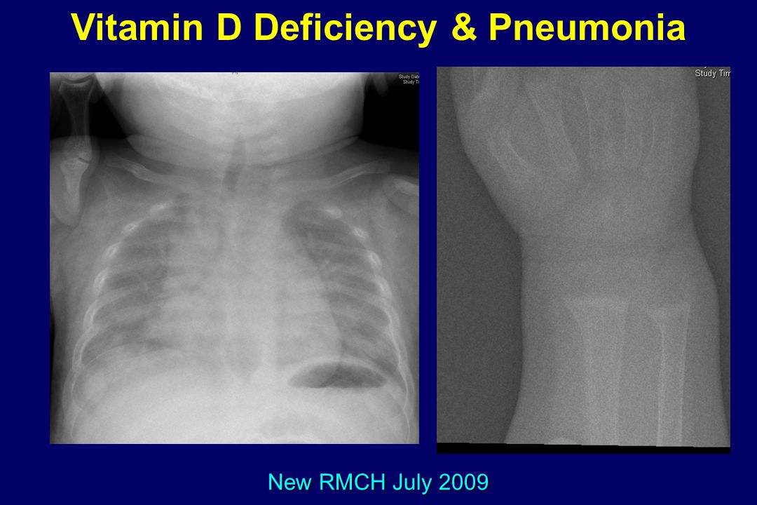 Vitamin D Deficiency & Pneumonia
