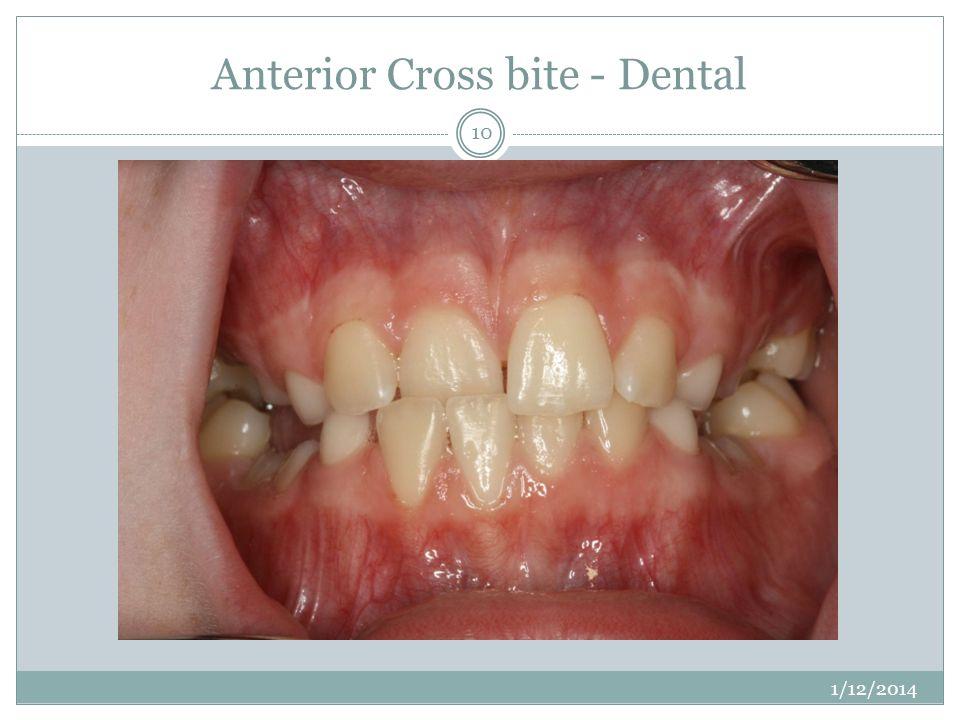 Anterior Cross bite - Dental