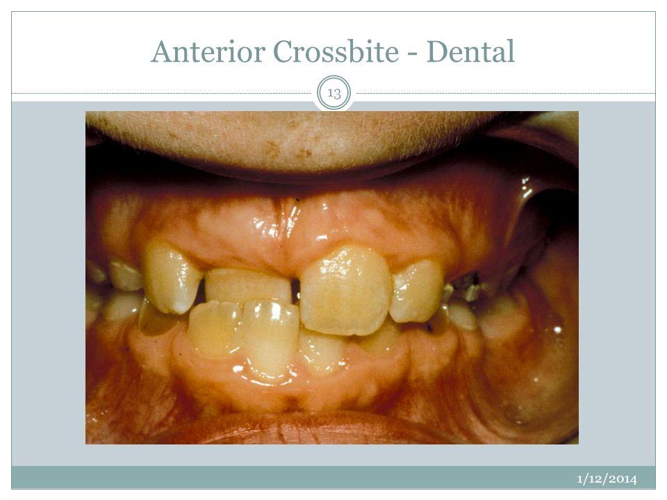 Anterior Crossbite - Dental